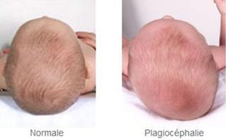 Plagiocephalie Osteopathie