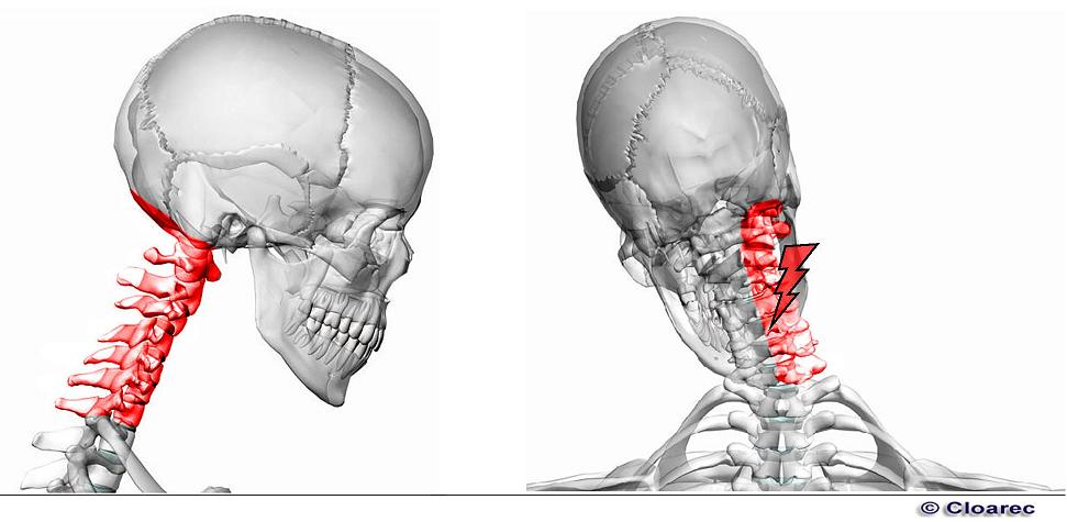 Les douleurs dans la tête de pour les muscles du cou