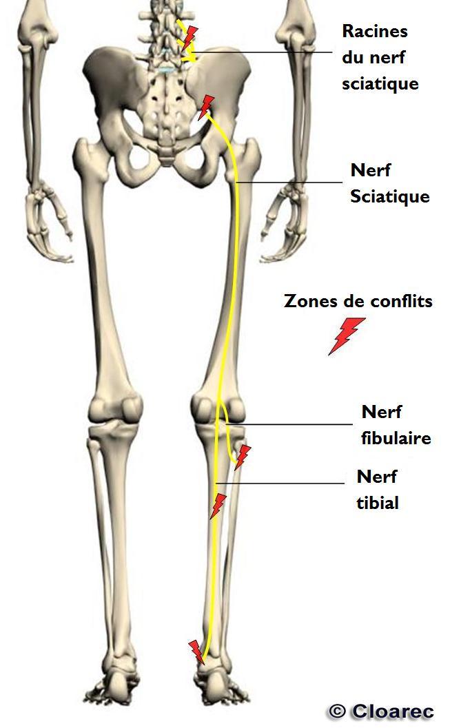 nerf sciatique jambe