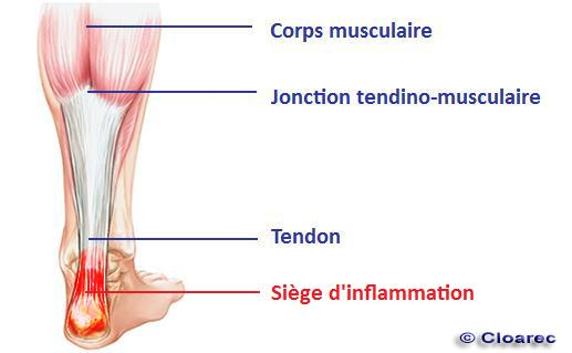tendinite osteopathe saint maur